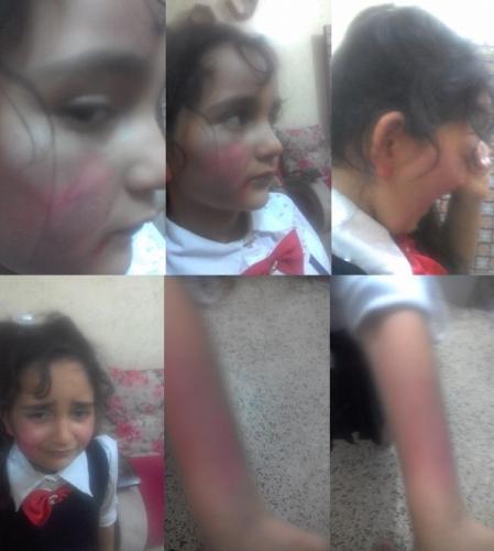 Photo of إعتداء وحشي على طالبة والتربية تحقق