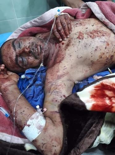 Photo of إصابة منتسب في الكهرباء بانفجار عبوة ناسفة في كركوك