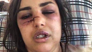 Photo of بعد انتشار فيديو يوضح سبب الاعتداء على اللامي.. قانوني يوضح القيمة القانونية له