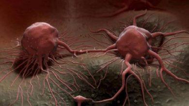 Photo of السكريات واللحوم المشوية.. 10 معلومات جديدة عن السرطان